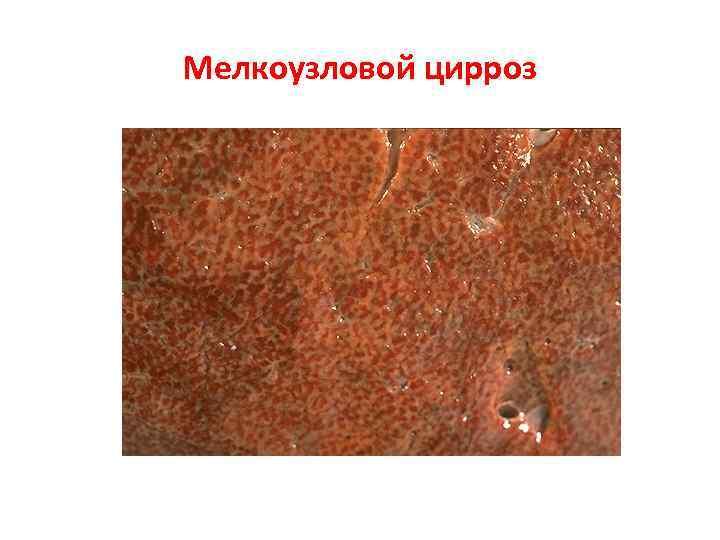 Диагностика и лечение мелкоузлового цирроза печени