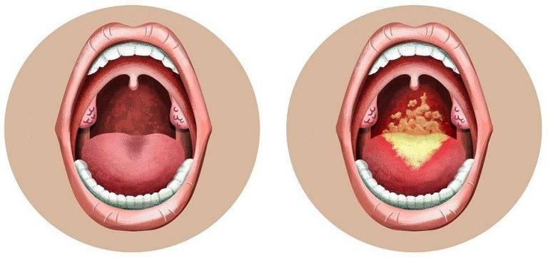 Симптомы и лечение фарингита у взрослых