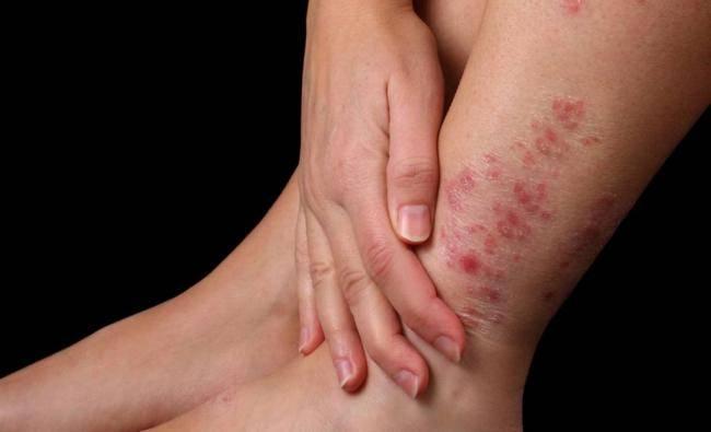 отличие псориаза от дерматита