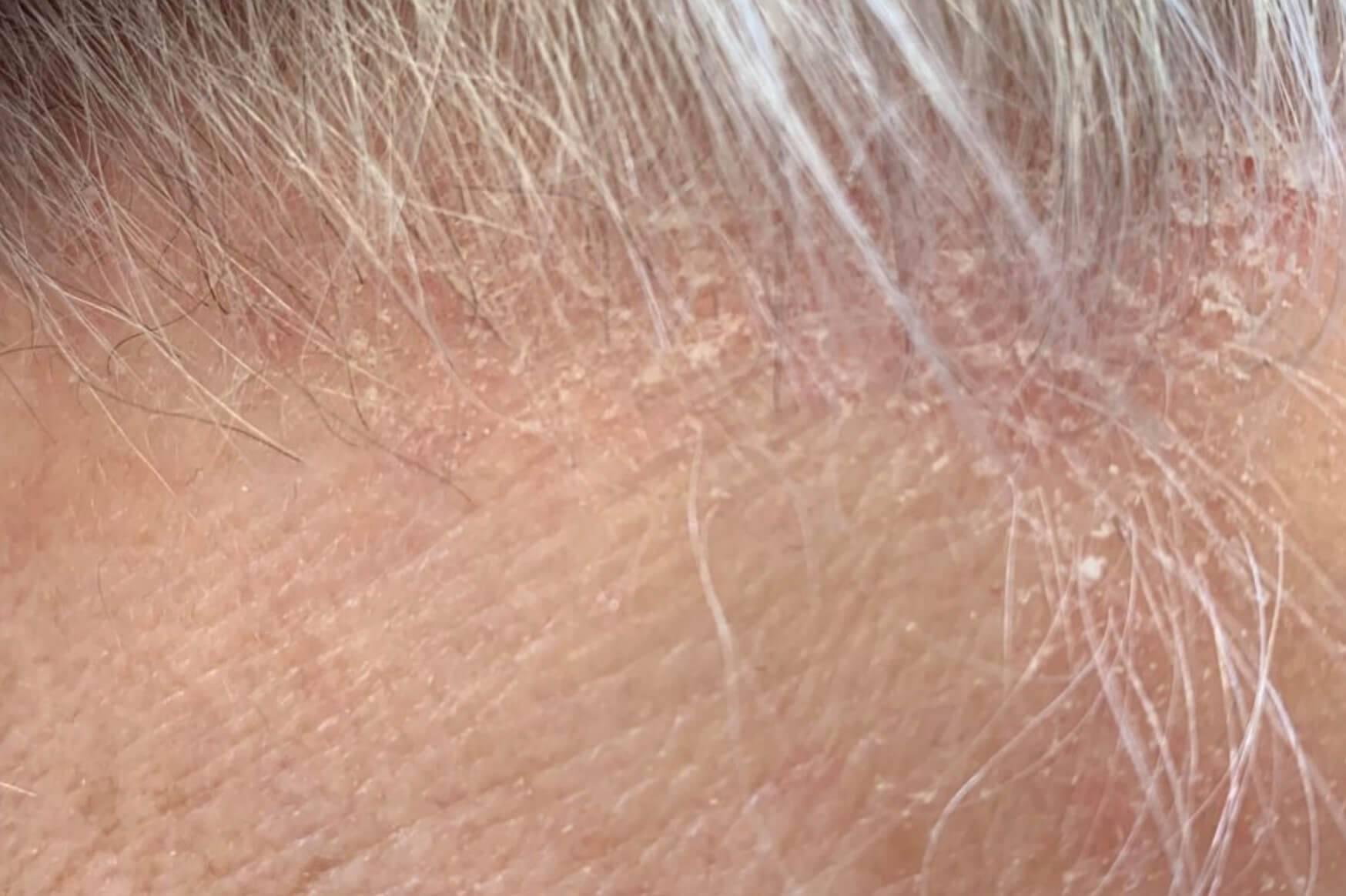 дерматит в голове