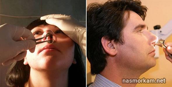 кончик носа покраснел и болит