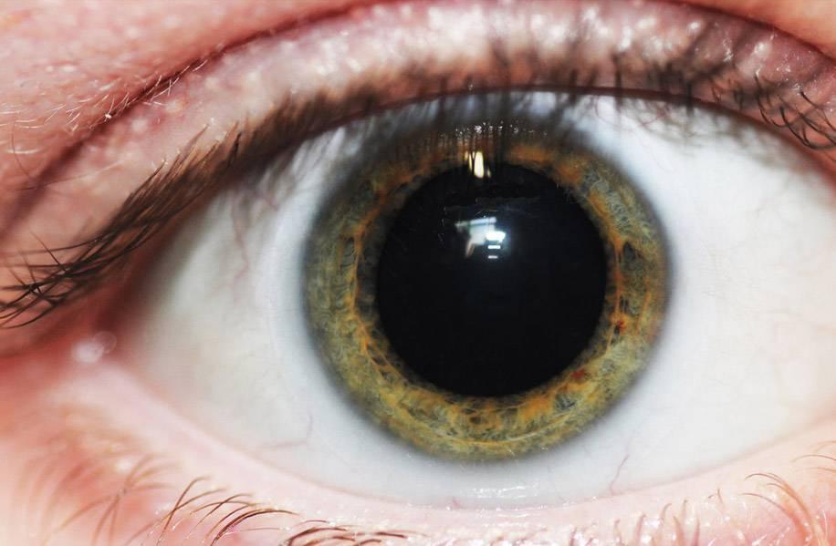 Причины суженных зрачков глаз у человека