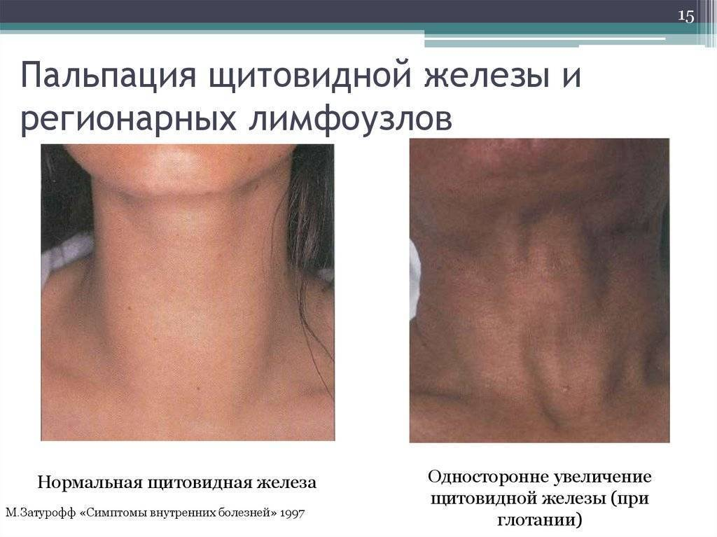 увеличение щитовидной железы причины