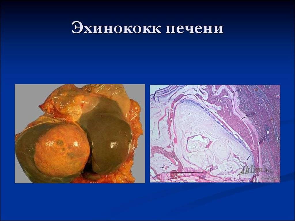 профилактика эхинококкоза у человека