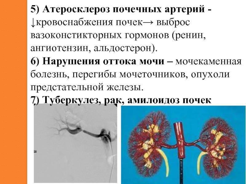Атеросклероз сосудов почек: причины, симптомы и возможные осложнения