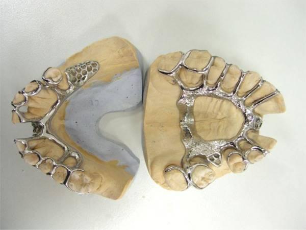 Бюгельный протез