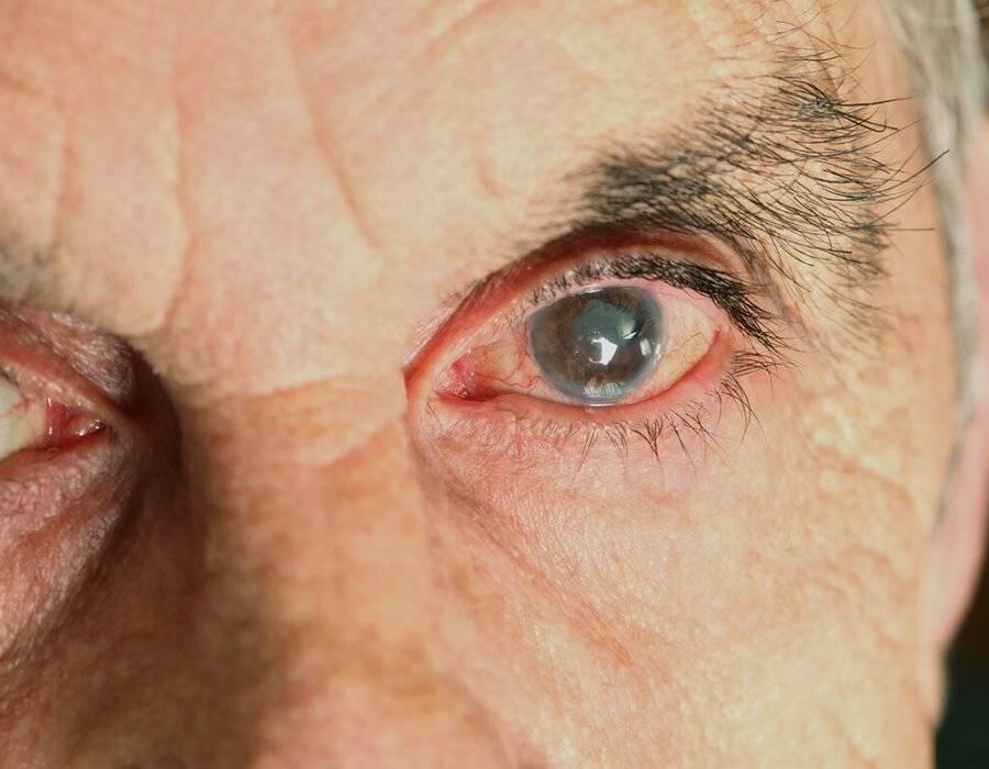 резко упало зрение на одном глазу