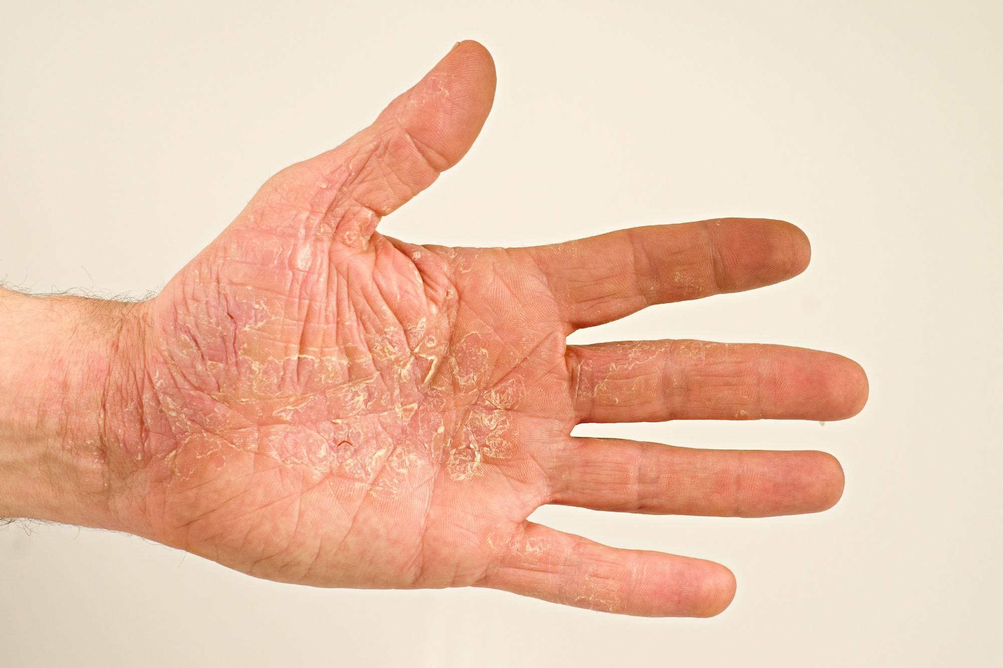 Аллергический дерматит на руках лечение