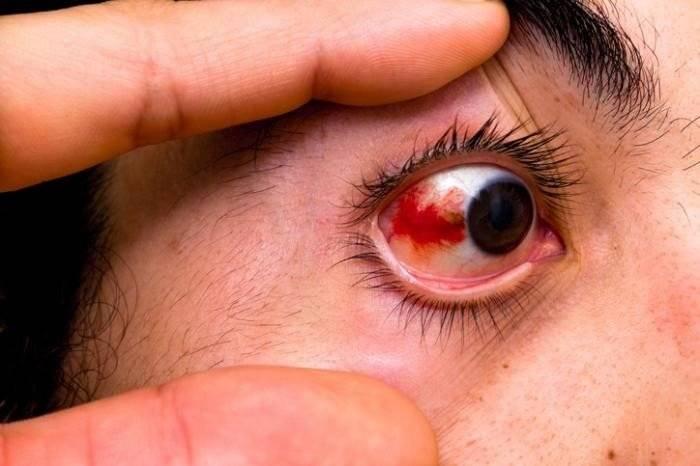 Почему появляется желтое пятно на белке глаза