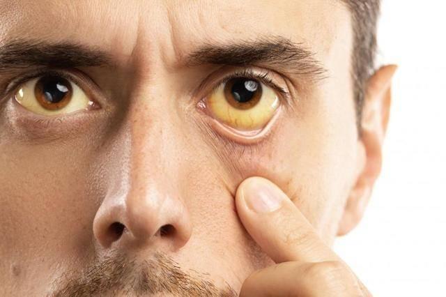 Почему возникает холестатическая желтуха и чем она опасна