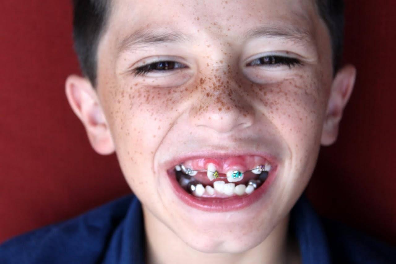 молочный зуб растет криво
