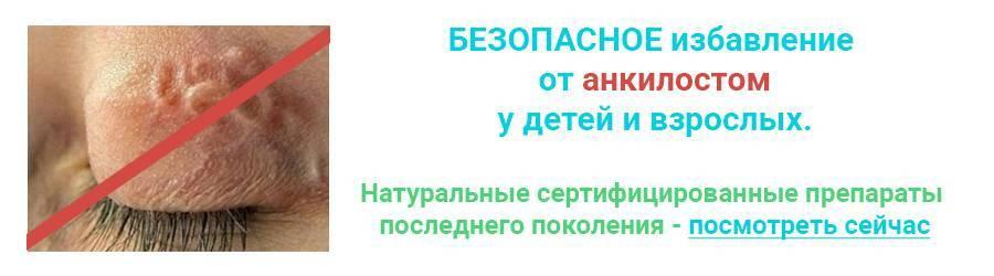 Анкилостомидозы (анкилостомоз и нектороз)