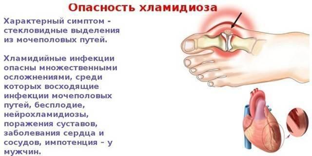 Хламидиоз – симптомы, причины, признаки и лечение