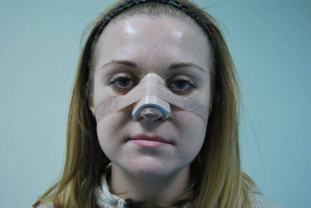 отек носа у ребенка лечение