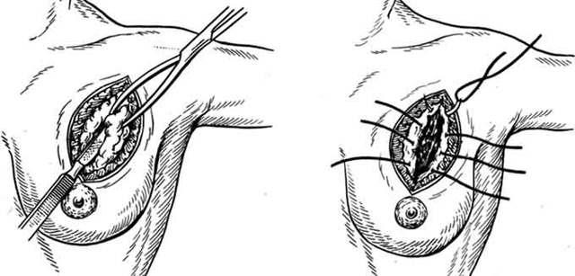 Операция по удалению фиброаденомы молочной железы: показания, проведение, восстановление после