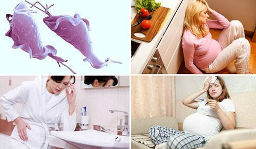 трихомоноз у беременных