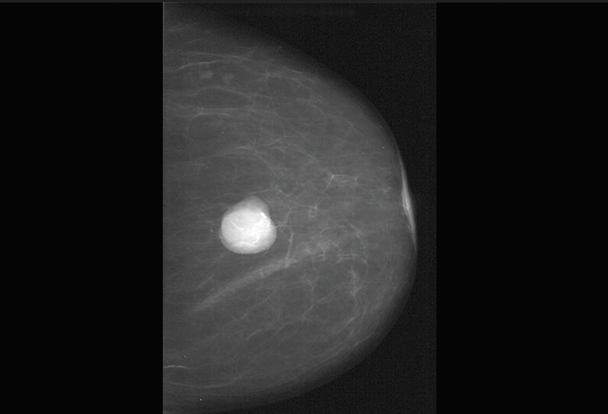Фиброаденома при беременности. лечили или нет?