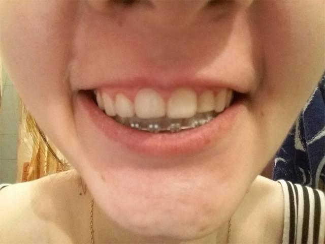 Зубы после брекетов разъехались — рецидив после ношения зубных конструкций