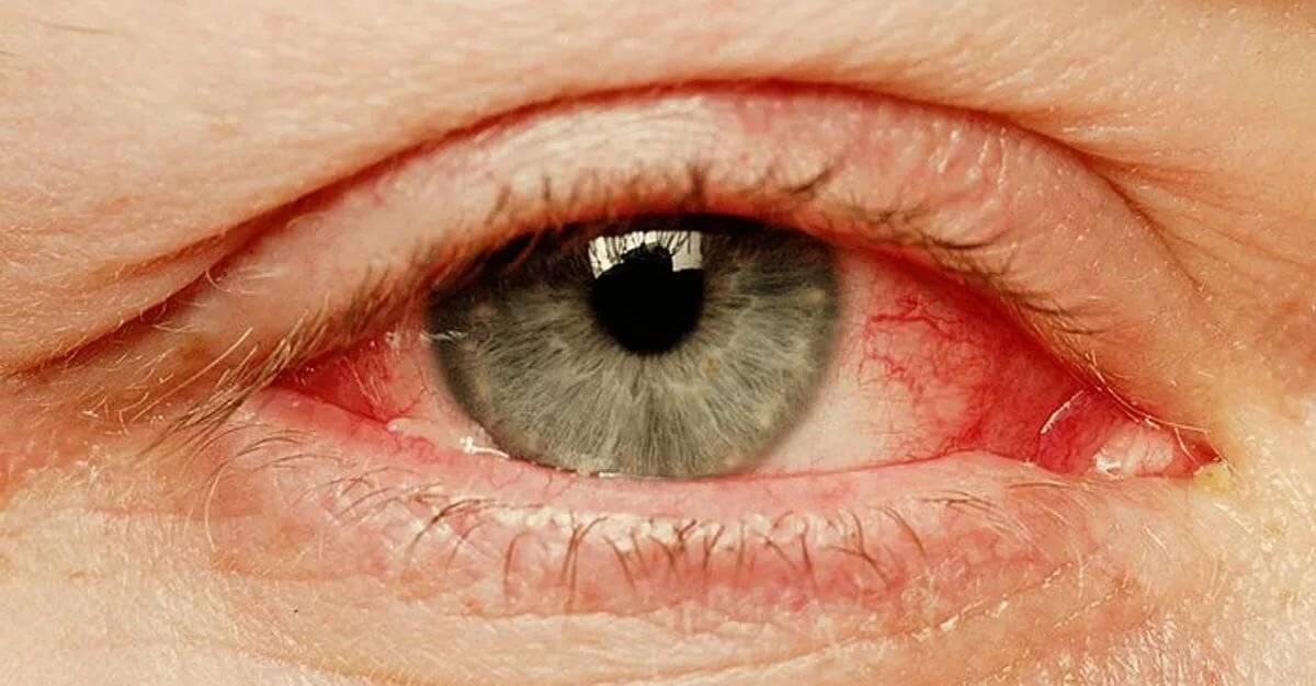 краснеют глаза после душа
