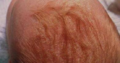 Основные симптомы дерматита на ягодицах и способы его лечения