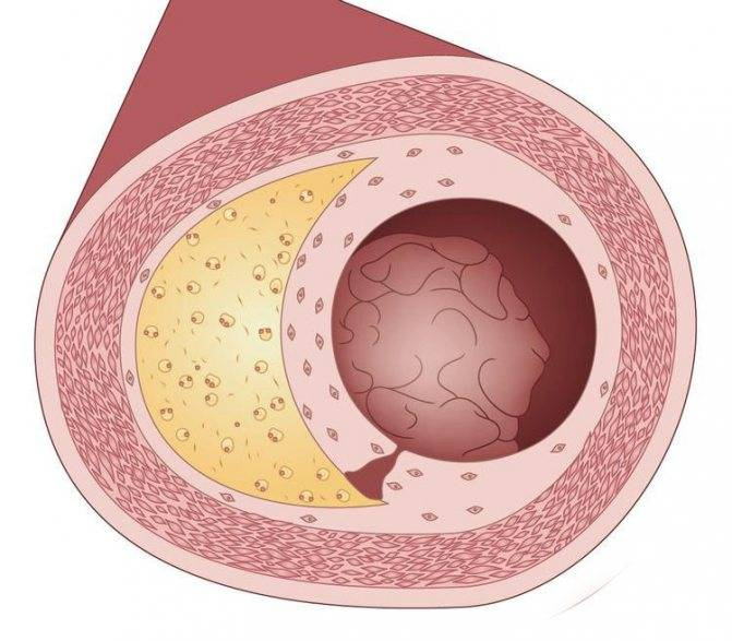 Какой врач лечит атеросклероз нижних конечностей и сосудов головного мозга: к кому обратиться?