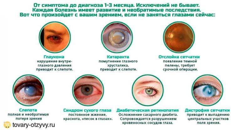 Синдром сухого глаза – причины заболевания, симптомы и лечение народными средствами