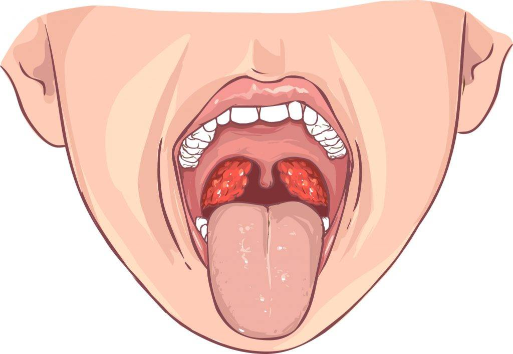 Фолликулярная ангина: причины развития, симптомы и как лечить этот тип тонзиллита