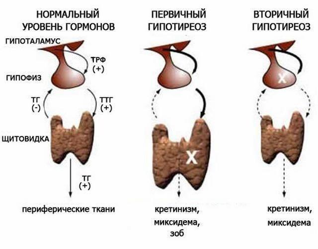 узлы на щитовидке гормоны в норме
