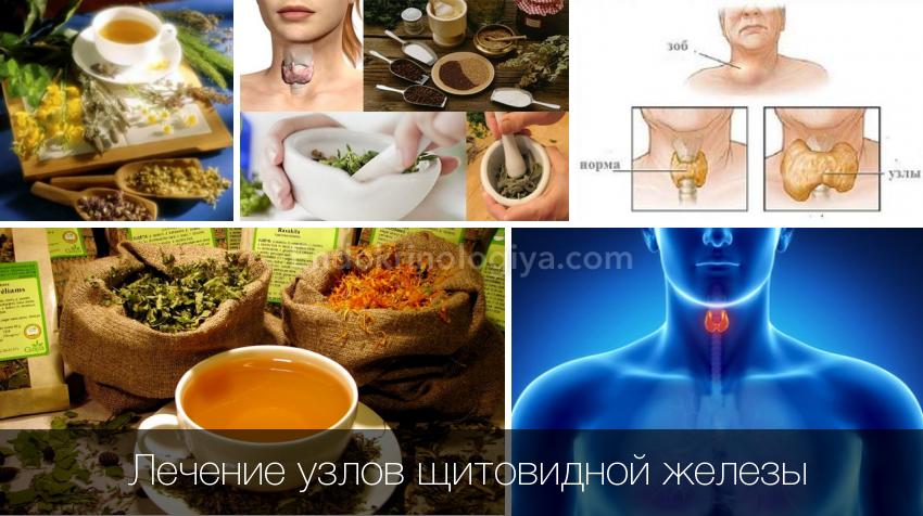 лечение узлов щитовидной железы народными средствами