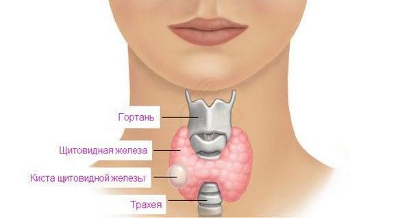 Увеличена щитовидка 2 степени