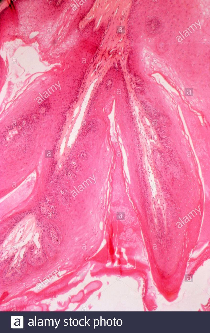 папиллома на миндалине