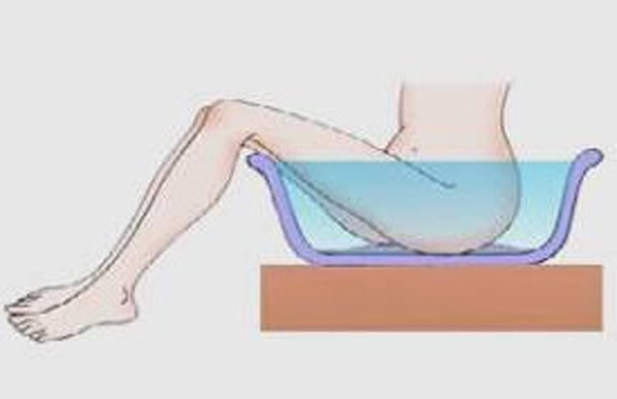 Лечебные ванночки при геморрое в домашних условиях