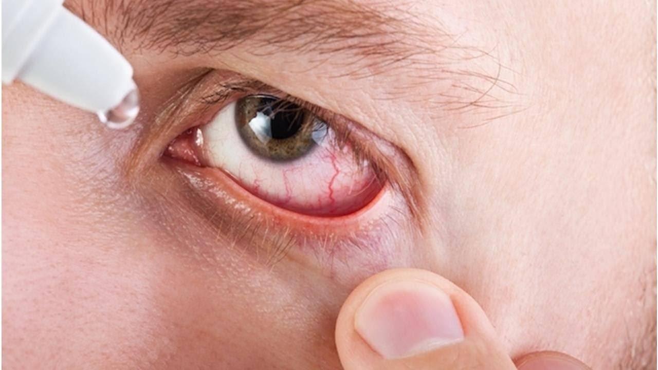 Герпетический конъюнктивит: симптомы и лечение у взрослых, и детей
