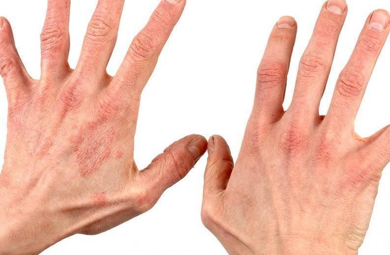 Чем снять зуд при дерматите у ребенка