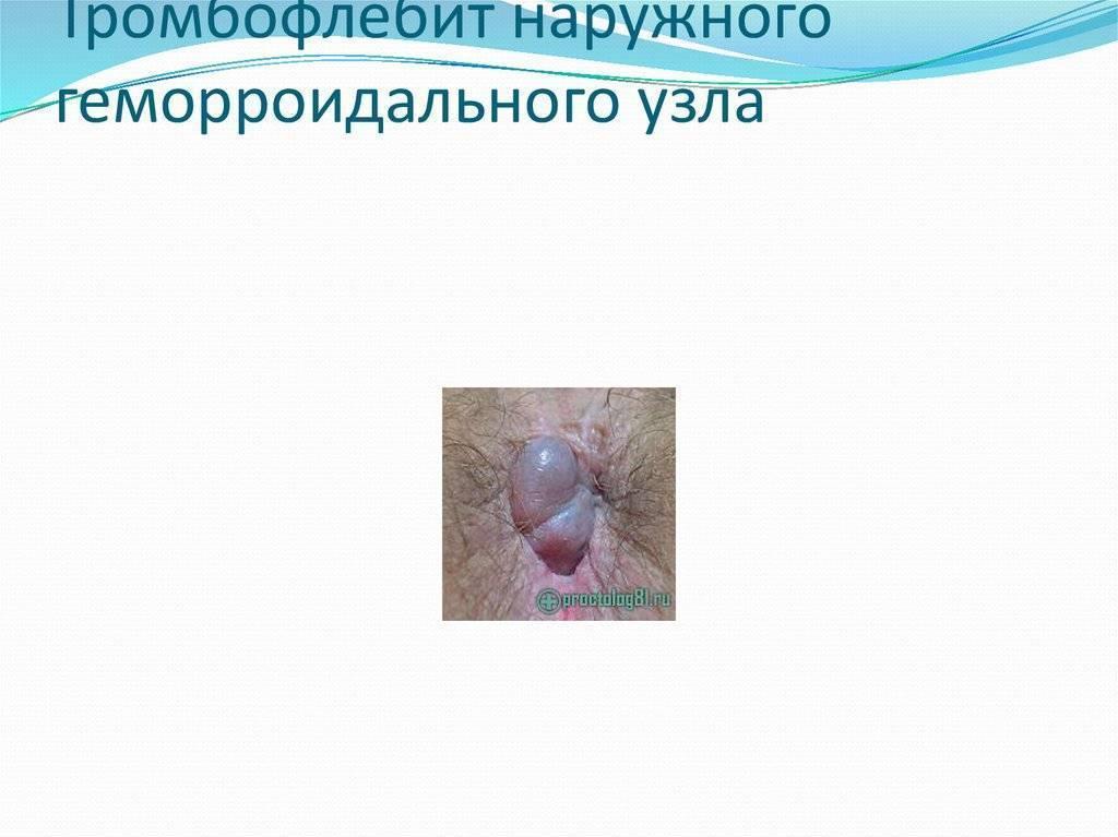 Тромбоз наружного геморроидального узла: причины, симптомы, лечение
