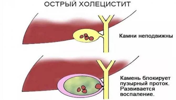 Примерное меню при холецистите: принципы диеты