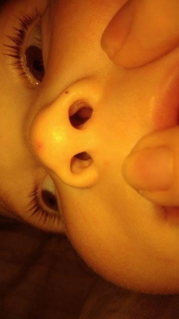 отек носа у новорожденного