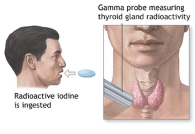 радиойодтерапия щитовидной железы