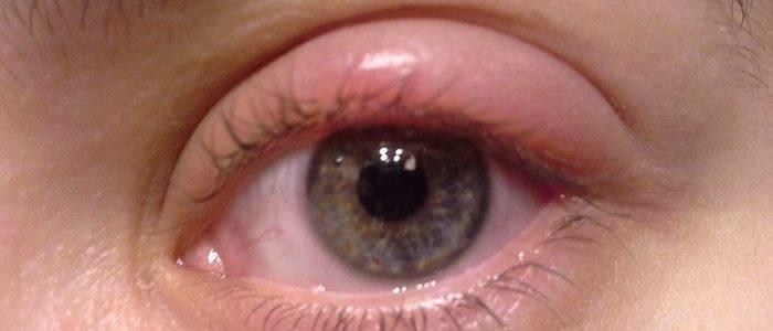 7 крайне неприятных заболеваний, которые могут вызвать воспаление верхнего или нижнего века