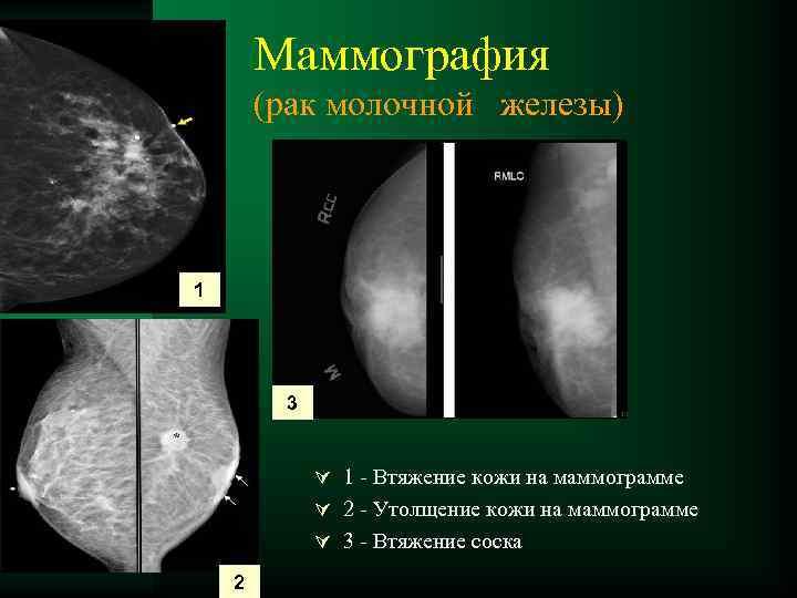 Маммография – это важнейшее исследование для каждой женщины