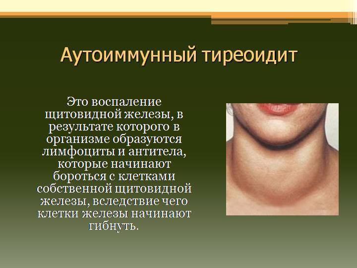 тиреоидит щитовидной железы что это такое