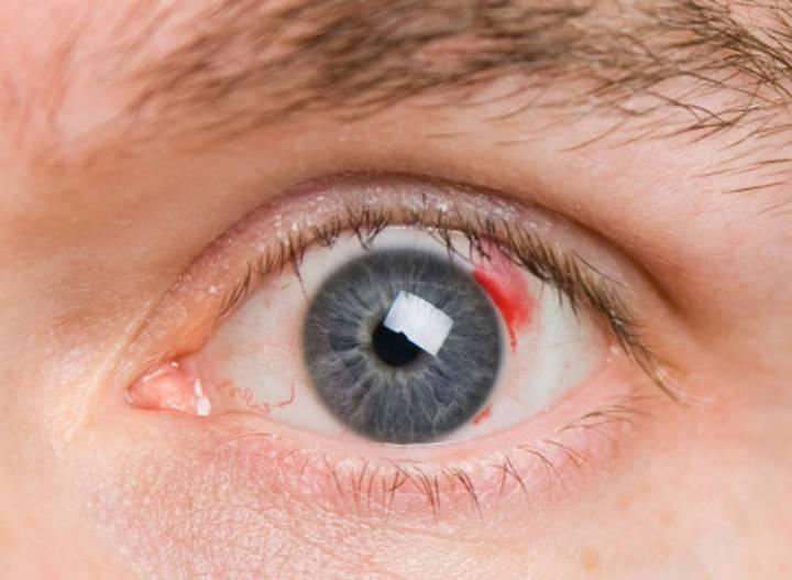 Черви глисты в глазах сбрасывать из глаз