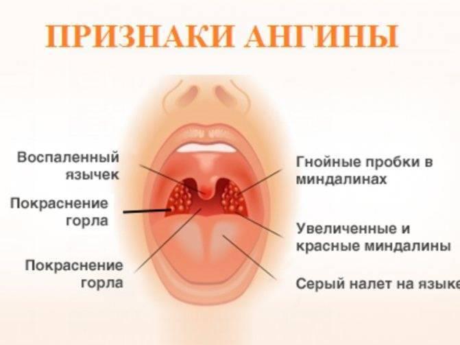 что кушать при ангине