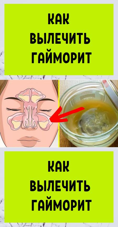 катаральный гайморит лечение народными средствами