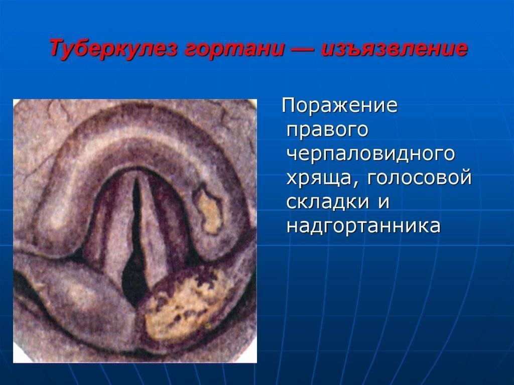 Туберкулез гортани: причины, симптомы, диагностика и лечение