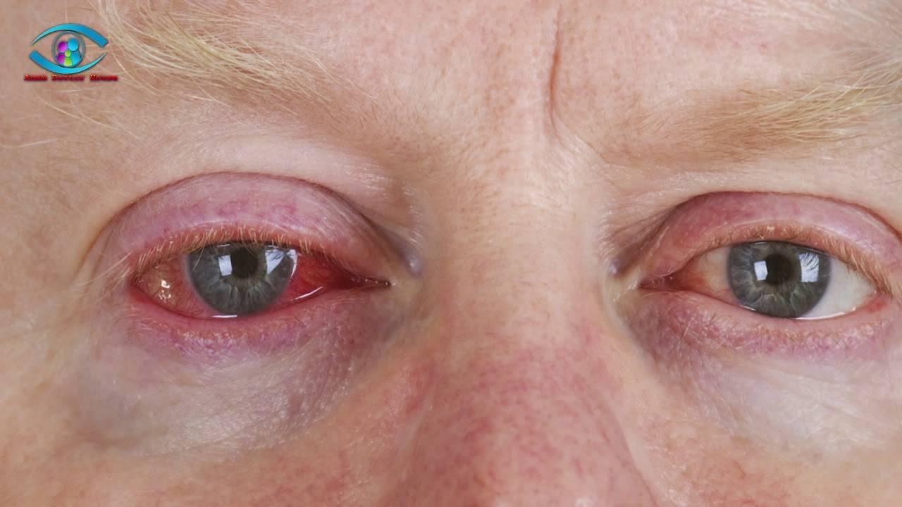 глаза красные болят и слезятся