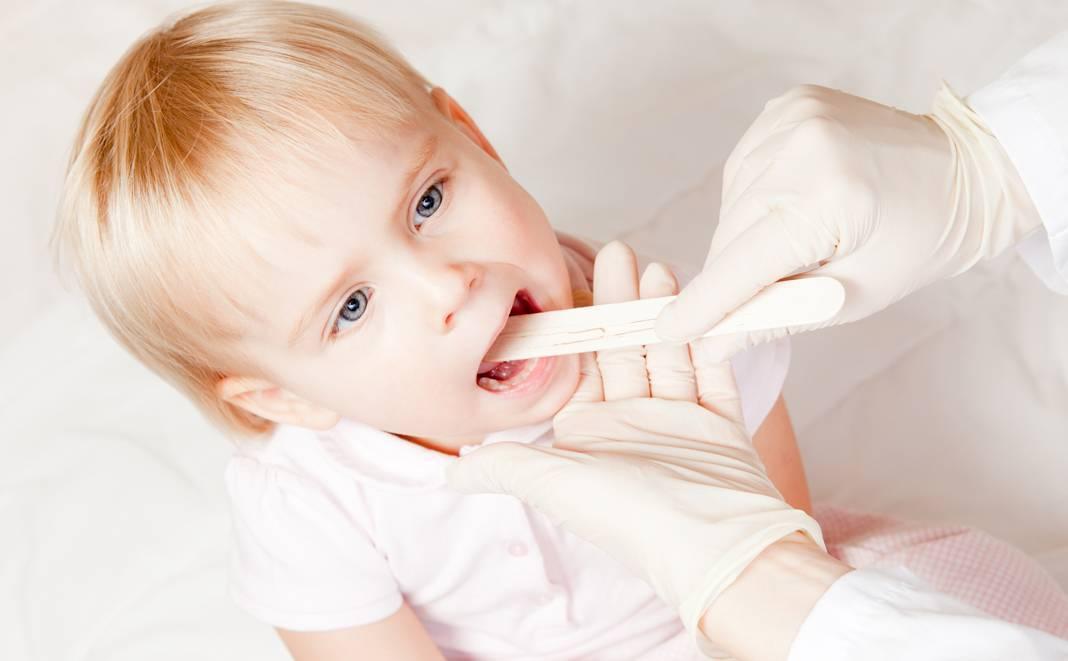 Трахеит у детей: симптомы и лечение по комаровскому