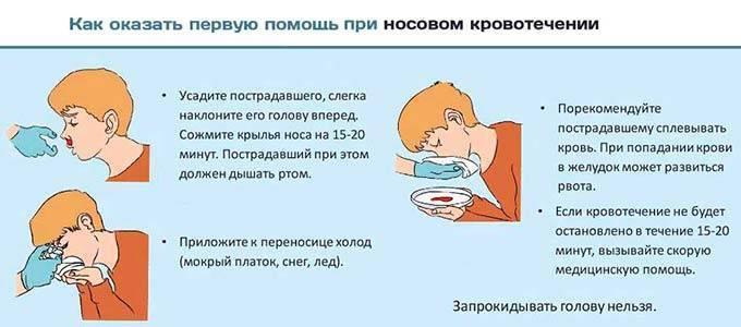 Первая помощь при носовом кровотечении: особенности, пошаговое описание и рекомендации