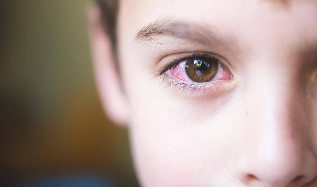 заболевания глаз у новорожденных