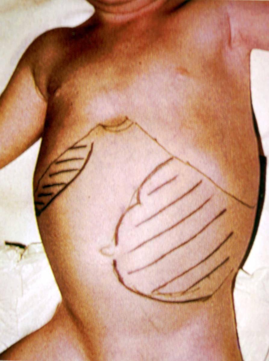 Кожно-слизистый лейшманиоз (эспундия) - симптомы болезни, профилактика и лечение кожно-слизистого лейшманиоза (эспундии), причины заболевания и его диагностика на eurolab